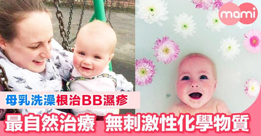 母乳洗澡根治BB濕疹  最自然的治療無刺激性化學物質 媽媽用自己的母乳為替兩名患有濕疹的孩子洗澡