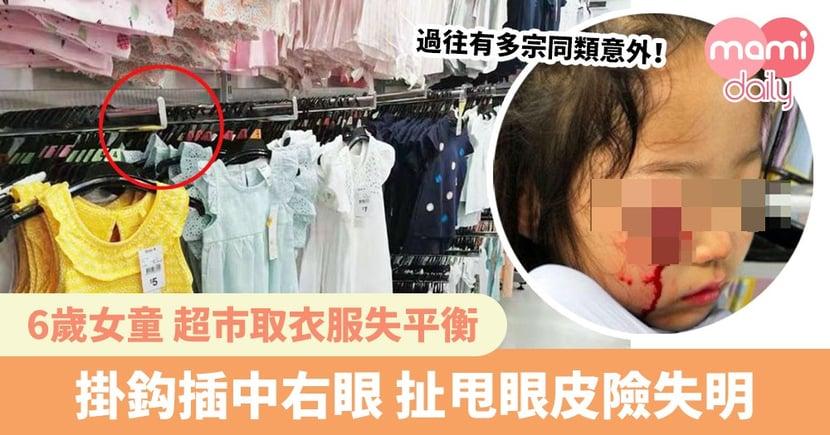 6歲女童超市取衣服失平衡 掛鈎插中右眼 扯甩眼皮險失明