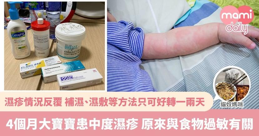 【BB濕疹】皮膚反覆變差有機會患濕疹 成因更可能與食物過敏有關