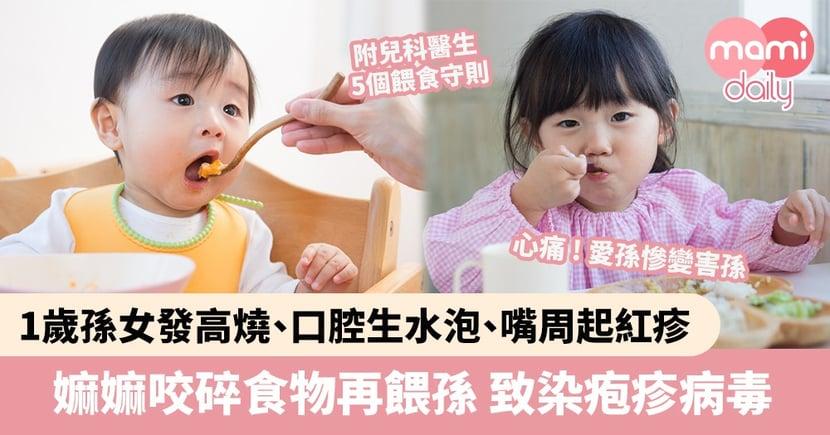 【幼兒健康】1歲孫女染疱疹病毒發高燒、口腔生水泡、嘴周起紅疹 全因與嫲嫲咬碎食物再餵食有關?