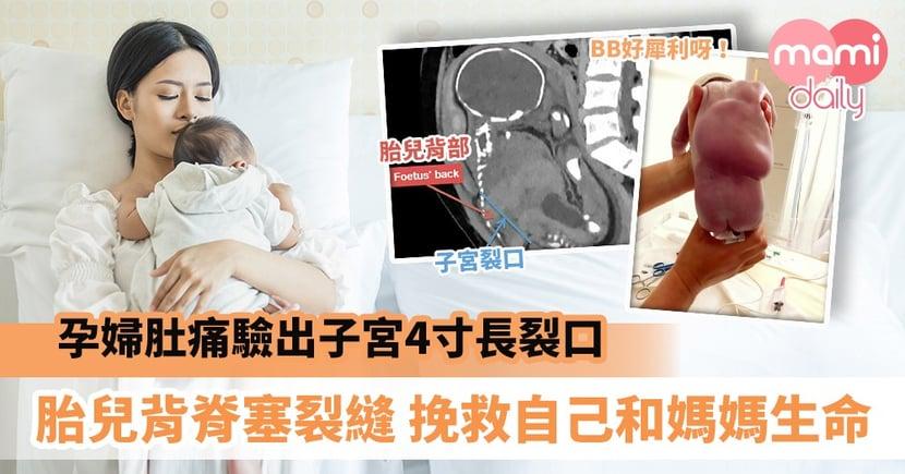 【生命奇蹟】孕婦肚痛驗出子宮4寸長裂口 胎兒背脊堵塞裂縫挽救了自己和媽媽生命