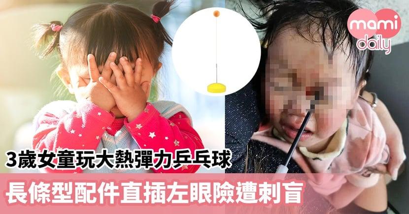 【危險玩具】3歲女童玩大熱彈力乒乓球  長條型配件直插左眼險遭刺盲