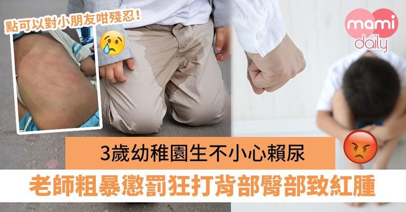 【老師虐兒】3歲幼稚園生不小心賴尿 老師粗暴懲罰狂打背部臀部致紅腫