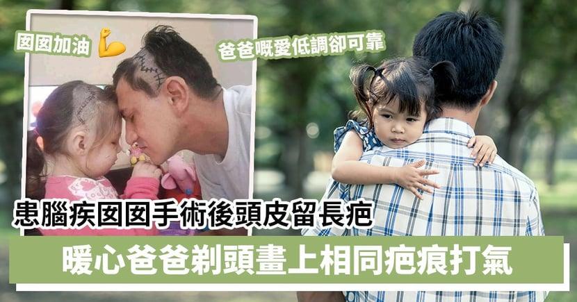 【父愛如山】患腦疾囡囡手術後頭皮留長疤 暖心爸爸剃頭畫上相同疤痕打氣