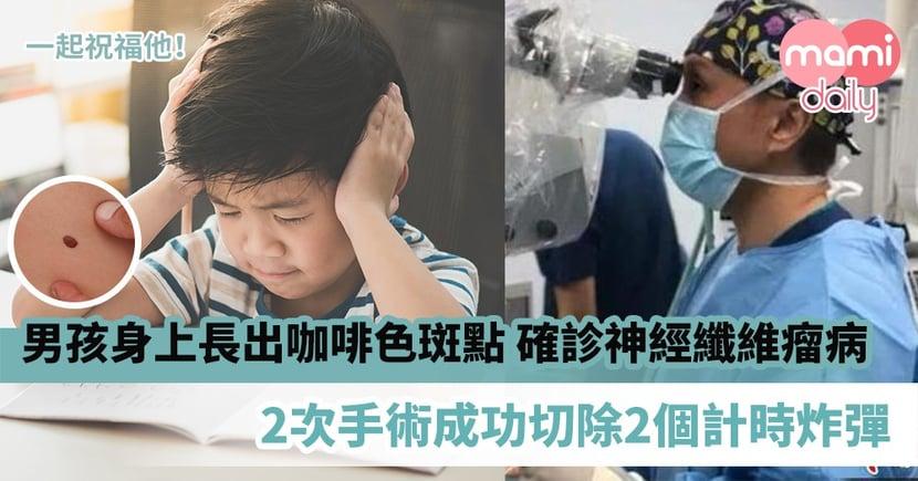 【罕見疾病】5歲男孩身上長出咖啡色斑點 確診罕見神經纖維瘤病 2次手術成功切除2個計時炸彈