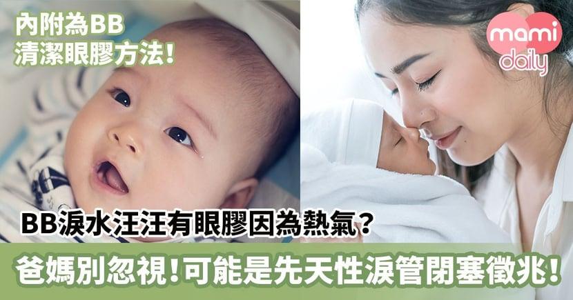 【BB健康】BB淚水汪汪有眼膠因為熱氣?爸媽別忽視!可能是先天性淚管閉塞徵兆!