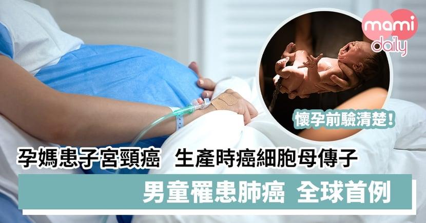 【懷孕前驗清楚】孕媽媽患子宮頸癌   生產時癌細胞母傳子  男童罹患肺癌全球首例