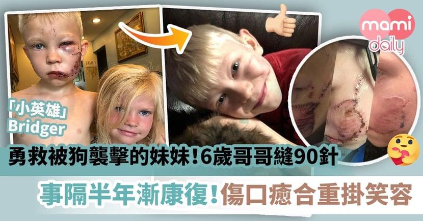 【小英雄】勇救被狗襲擊的妹妹!6歲哥哥縫90針 事隔半年漸康復!傷口癒合重掛笑容