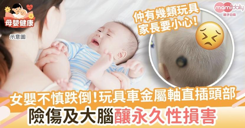 【恐怖意外】女嬰不慎跌倒!玩具車金屬軸直插頭部 險傷及大腦釀永久性損害