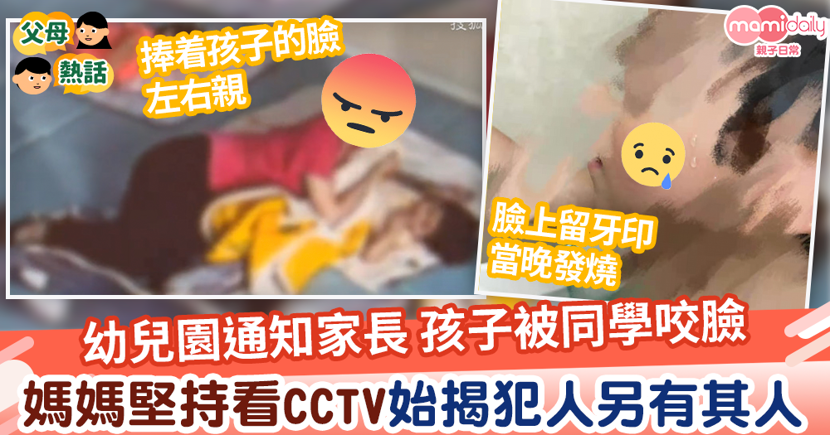 【令人髮指】女幼師通知家長孩子被同學咬臉留牙印 媽媽堅持翻看CCTV始揭犯人另有其人