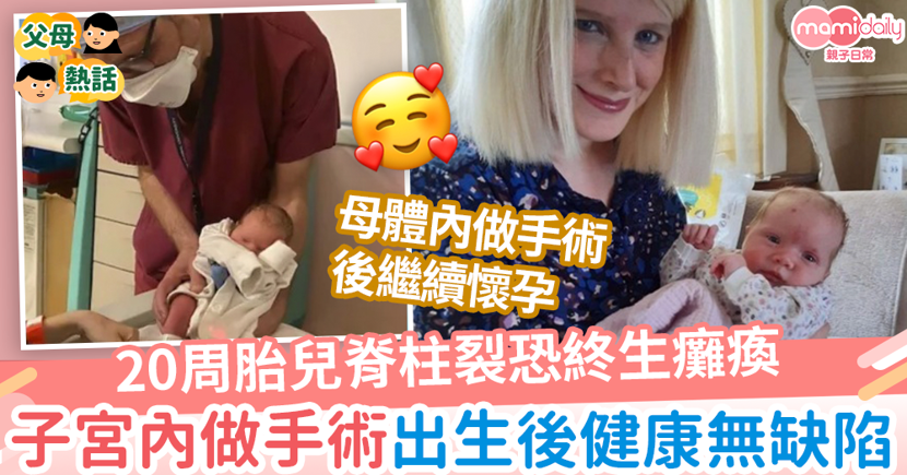 【奇蹟寶寶】20周胎兒脊柱裂恐終生癱瘓 子宮內做手術出生後健全無缺陷