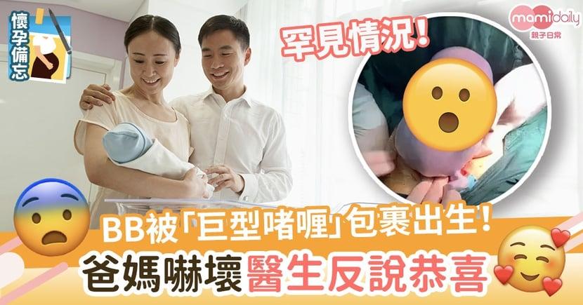 【百年一遇】BB被「巨型啫喱」包裹出生 爸媽嚇壞醫生反說恭喜