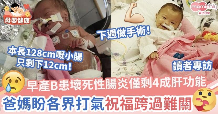 【集氣加油】早產B患壞死性腸炎剩4成肝功能下週做手術 爸媽盼各界打氣祝福跨過難關