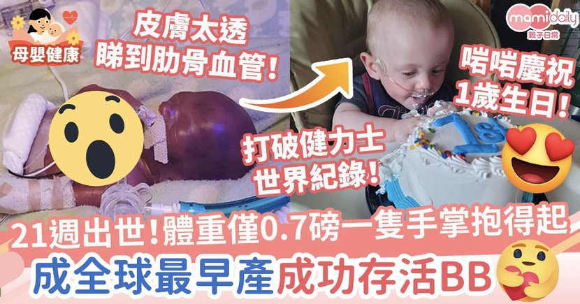 【奇蹟寶寶】21週出世!體重僅0.7磅一隻手掌抱得起 破世界紀錄成全球最早產成功存活BB
