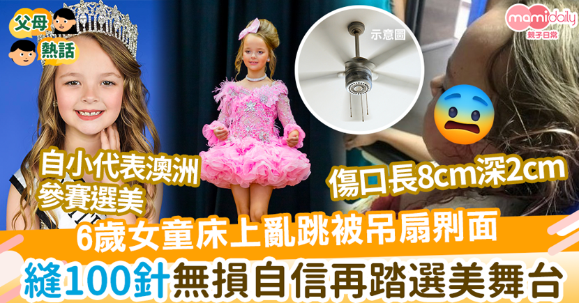 【家居意外】6歲女童上格床蹦蹦跳遭吊扇𠝹面 花3小時縫100針無損自信再踏選美舞台