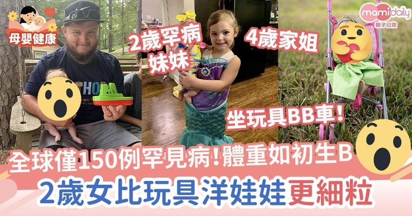 【侏儒症】患上全球僅150例罕病!體重恍如初生嬰兒 2歲女比玩具洋娃娃更細粒