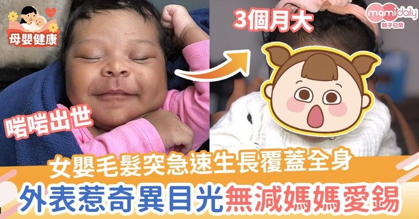 【與眾不同】3個月大女嬰毛髮突急速生長覆蓋全身 外表惹奇異目光無減媽媽愛錫