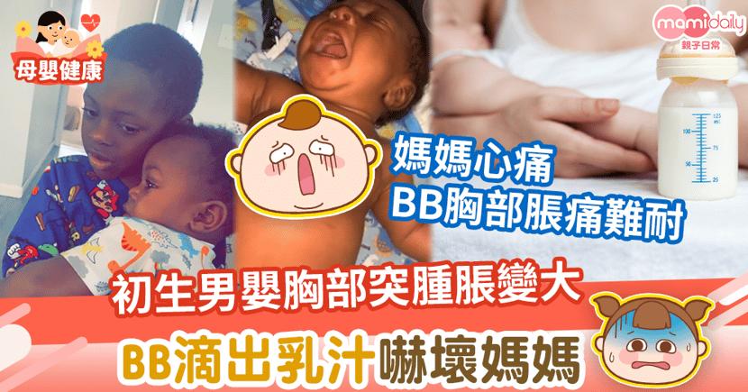 【罕見病】初生男嬰胸部突然腫脹變大 BB滴出乳汁嚇壞媽媽