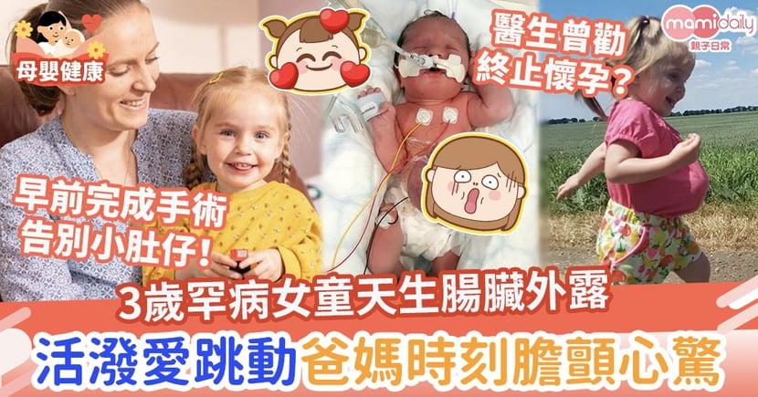 【先天性臍膨出】3歲罕病女童天生腸臟外露 活潑愛跳動爸媽時刻膽顫心驚
